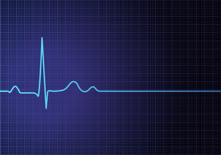 Heartbeat monitor showing single heartbeat and flatline