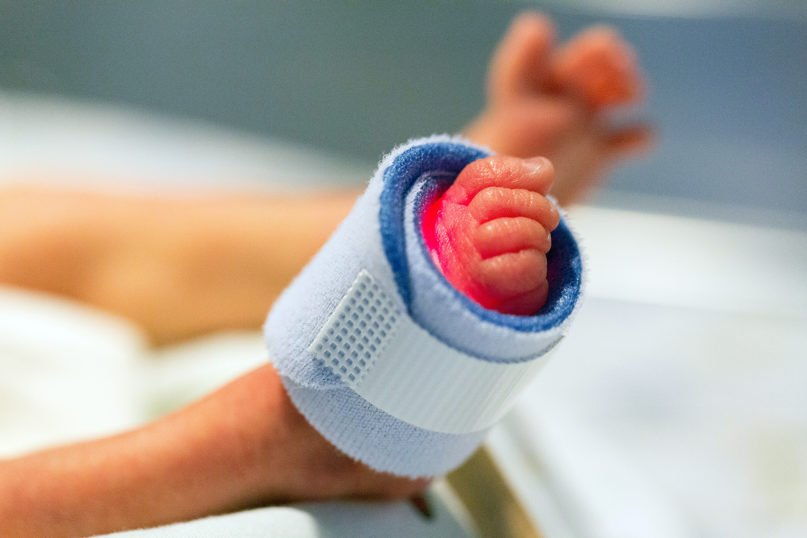 A monitor on the foot of a baby born prematurely. Photo by SeppH/Pixabay/Creative Commons