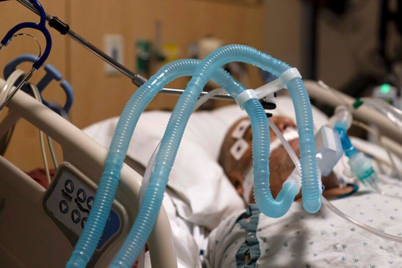 In this Nov. 19, 2020, file photo, ventilator tubes are attached to a COVID-19 patient at Providence Holy Cross Medical Center in the Mission Hills section of Los Angeles. (AP Photo/Jae C. Hong, File)