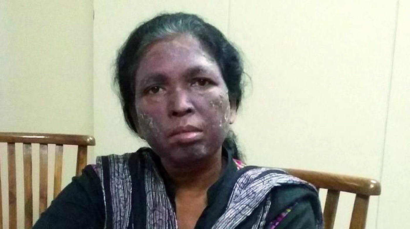 Soni Sori poses in 2016 after being attacked by unidentified men who threw acid at her because of her human rights work in Chhattisgarh, India. Photo courtesy of Outlook India